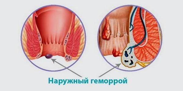 Лечение от наружного геморроя в домашних условиях 495