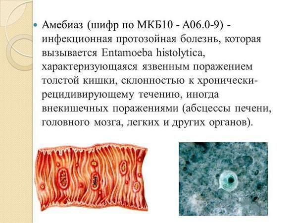 Определение амебиаза