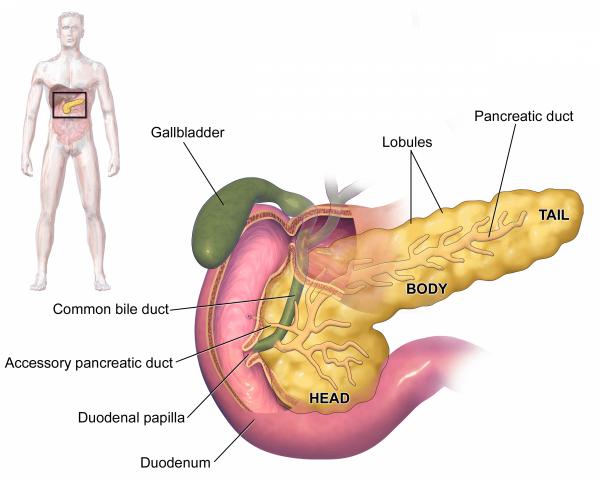 Панкреатит – это воспаление поджелудочной железы, которое может быть острым или хроническим
