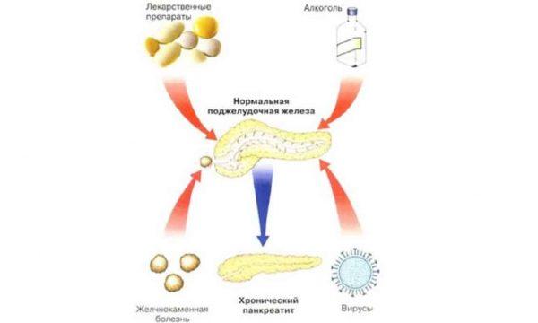 Причины хронического панкреатита