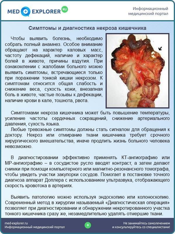 Симптомы и диагностика некроза кишечника