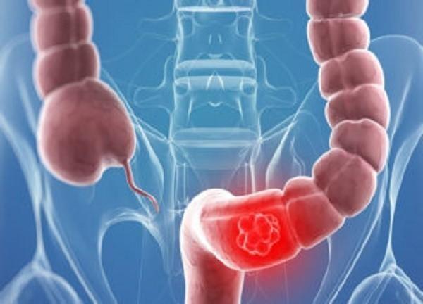 Симптомы рака прямой кишки у женщин