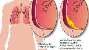 Схема плевральной полости