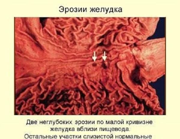Эрозия желудка бывает разных видов