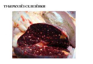 При разрезе видно очаги казеозного распада паренхимы
