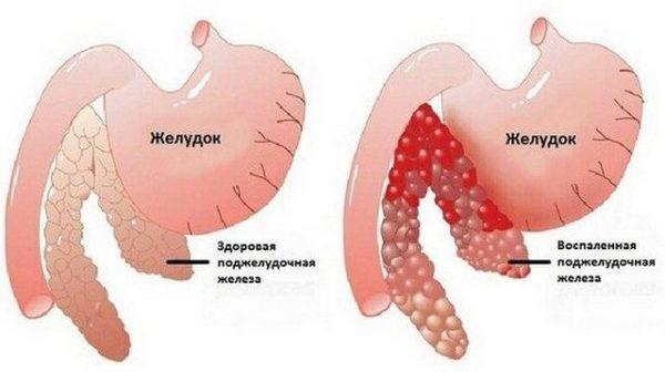 Боль и тяжесть могут быть вызваны обострением хронического панкреатита