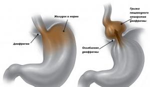 Тяжесть в левом подреберье может возникнуть из-за диафрагмальной грыжи