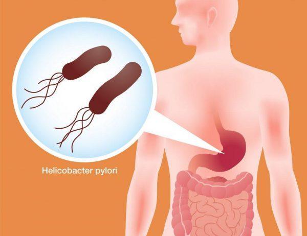 Бактерия Хеликобактер пилори — одна из самых распространенных причин появления гастрита