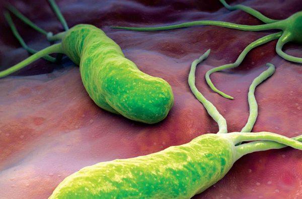 Бактерия Хеликобактер не боится соляной кислоты, находящейся в желудочном соке