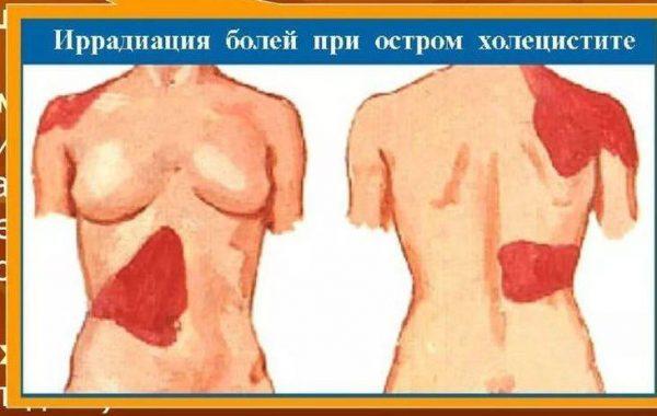 Иррадиация болей при остром холецистите