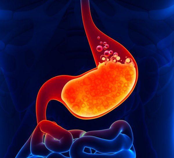 Диспепсия — характерное проявление обострения холецистита