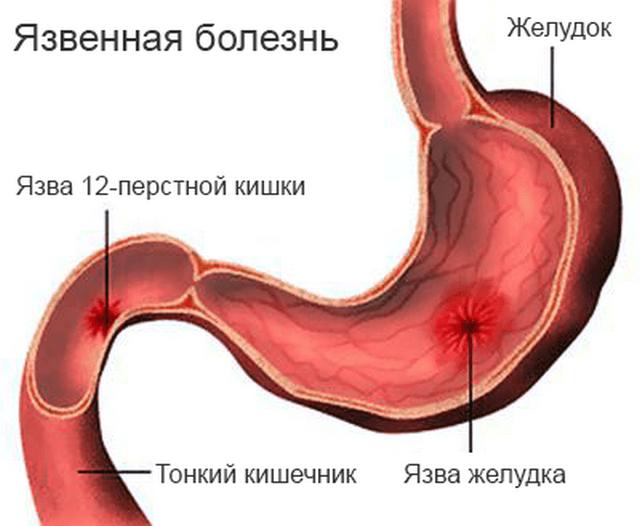 Язвы желудка и двенадцатиперстной кишки вызывают сильные боли и тяжесть в левом подреберье