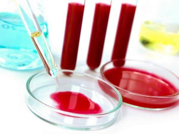 Обнаружить причину патологии поможет также общий анализ крови