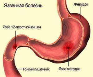 Язва часто сопровождается кишечной коликой