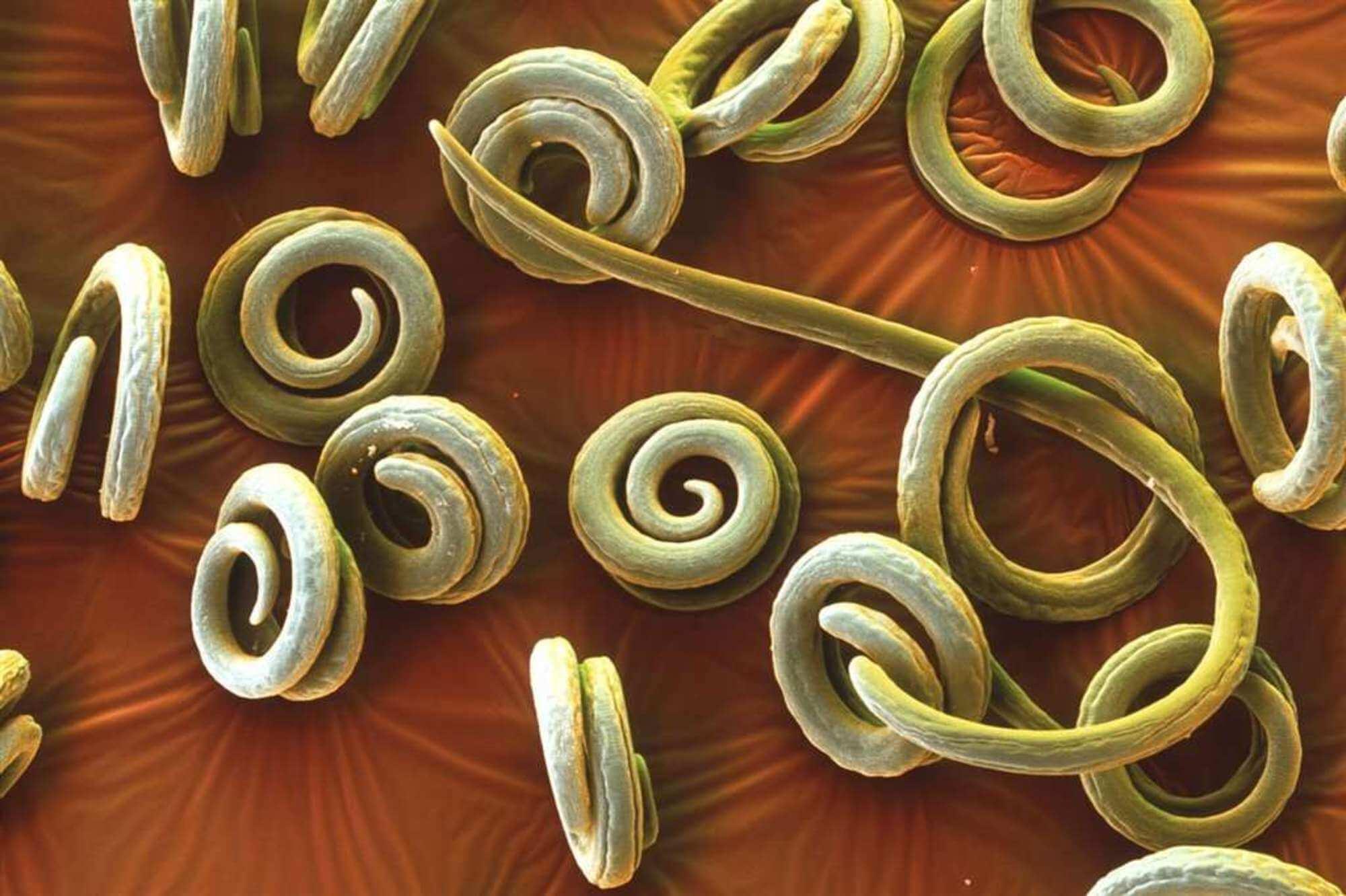 Паразитические плоские черви: представители, фото