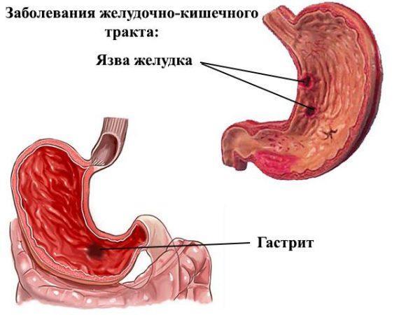 Гастрит и язва желудка