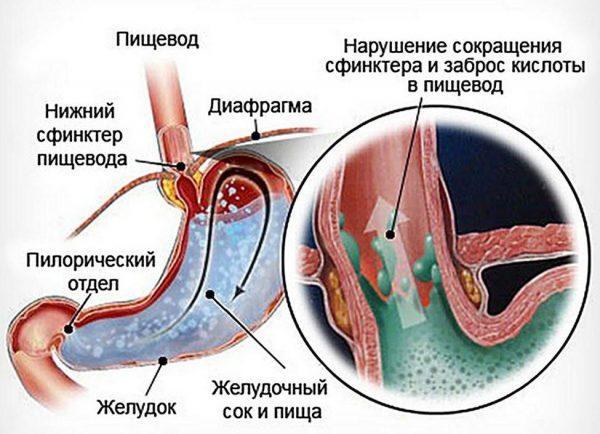Схема протекания рефлюкс-эзофагита