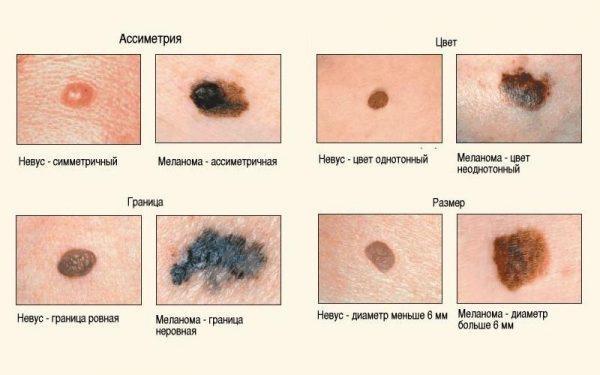 Чем родинка отличается от меланомы