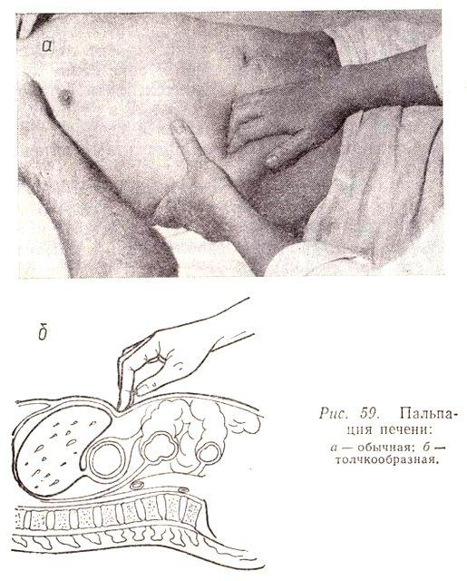 При помощи пальпации врач может поставить первичный диагноз