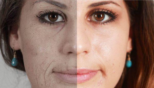 После отказа от курения постепенно улучшается состояние кожи
