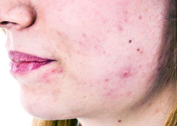 Прыщи на лице могут быть следствием заболеваний ЖКТ