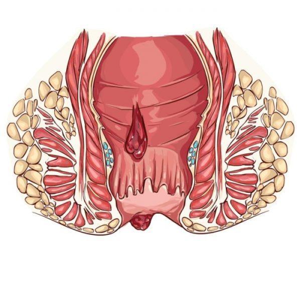Кровотечение из кишечника может быть признаком не только трещин, но, зачастую, язв, что особенно опасно для больного при наличии спазмов