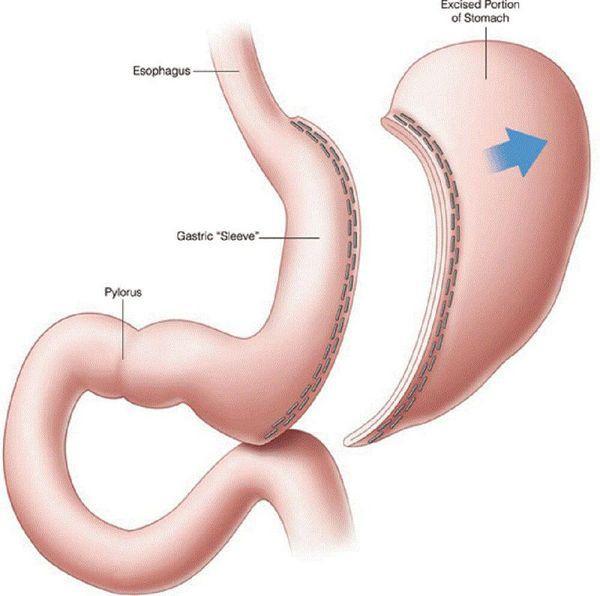 Выполнение резекции части желудка при опухоли
