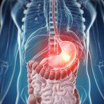 Язва кишечника: симптомы и лечение заболевания