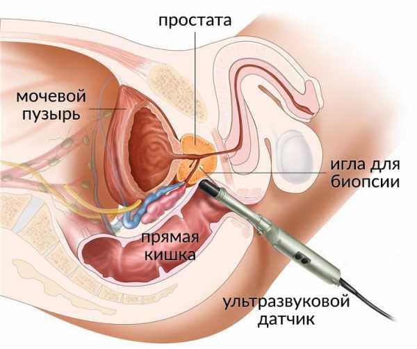 УЗИ кишечника