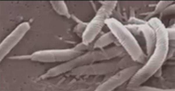 Бактерии хеликобактер пилори наносят серьезный вред организму