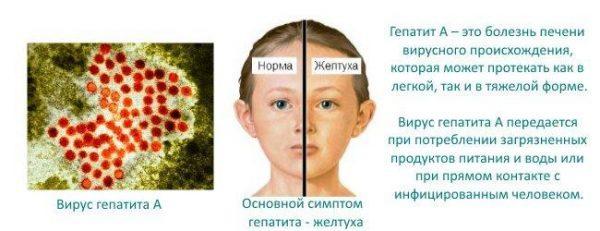 Болезнь Боткина или гепатит А
