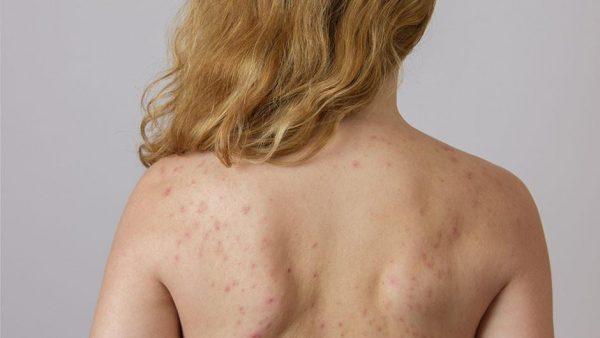 Болезни печени, кишечного тракта могут также стать причиной появления гнойников