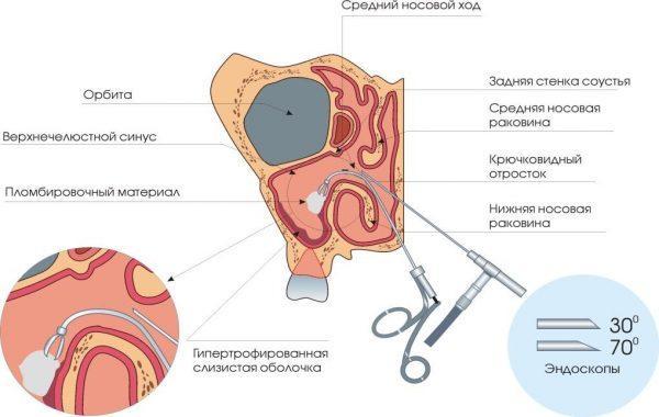 Эндоскопическое удаление кисты