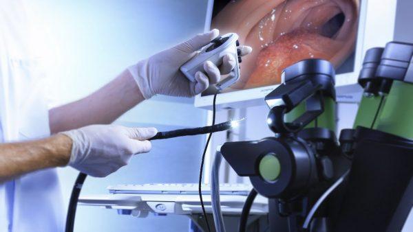Седация при колоноскопии: описание метода