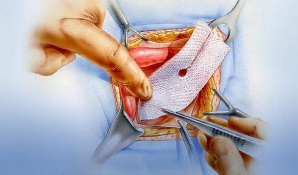 Герниопластика паховой грыжи
