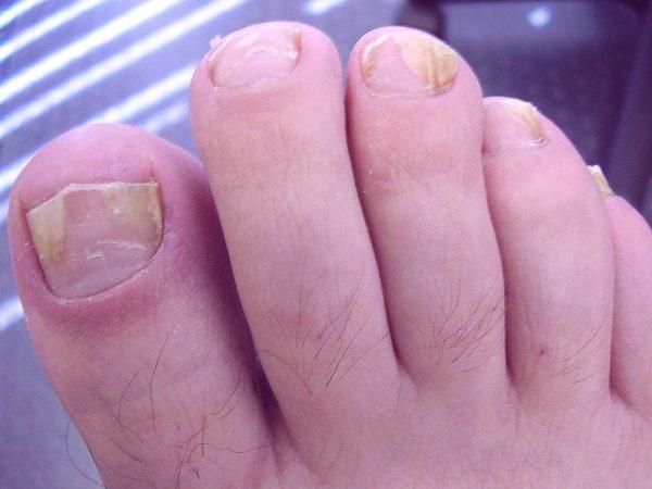 Грибок ногтей часто встречается у диабетиков