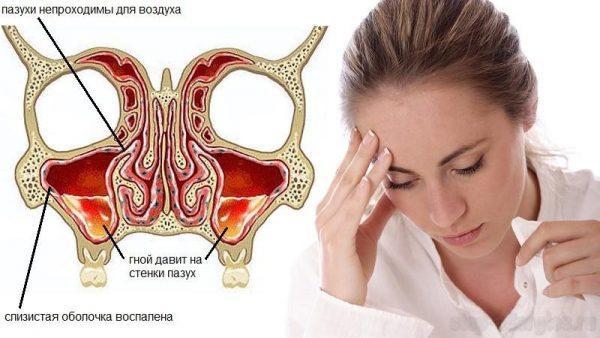 Хронический гайморит
