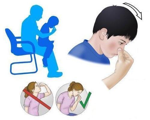 Как оказывать первую помощь при кровотечении из носа у детей