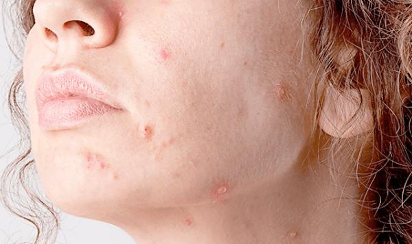 Кератоз кожи на лице