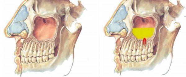 Киста зуба в гайморовой пазухе: насколько опасна, симптомы