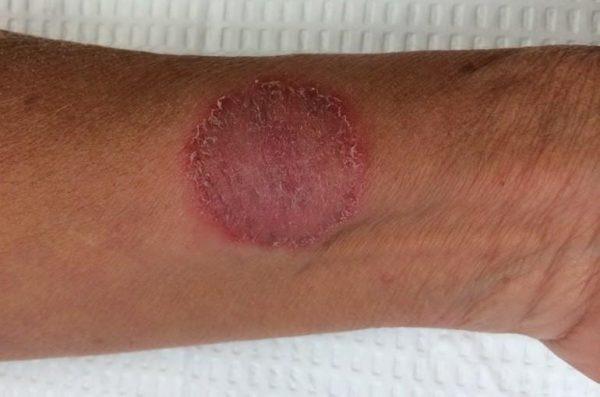Микроспория часто встречается у людей с ослабленным иммунитетом