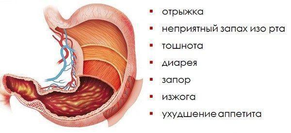 Основные симптомы гастрита