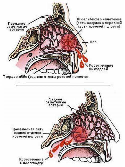 Переднее и заднее кровотечение из носа