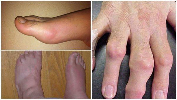 Подагра обычно сопровождается острым воспалительным приступом в области суставов ног или верхних конечностей