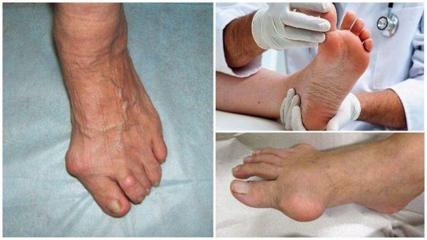 Подагрические тофусы на ногах
