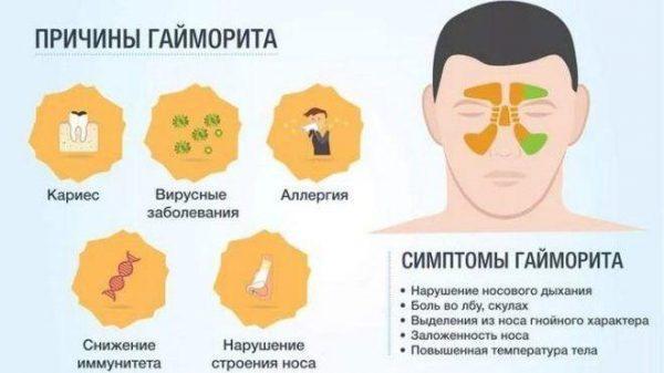 Причины, провоцирующие воспаление