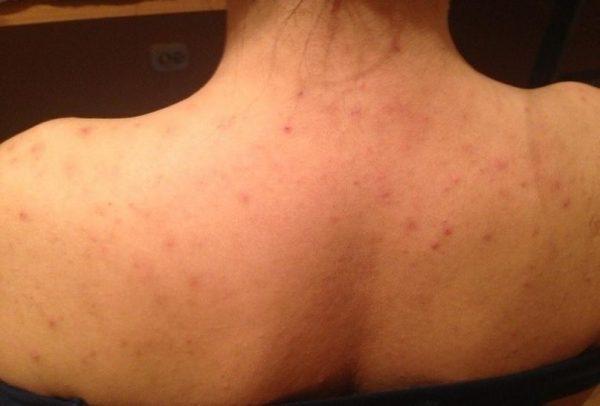 Прыщи могут появляться из-за грибковых или вирусных поражений кожи