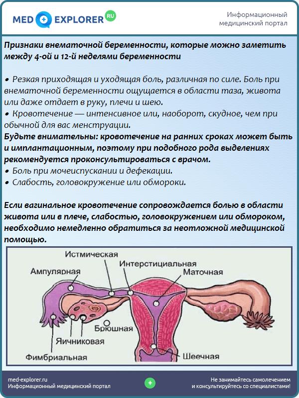 Признаки внематочной беременности, которые можно заметить между 4-ой и 12-й неделями беременности