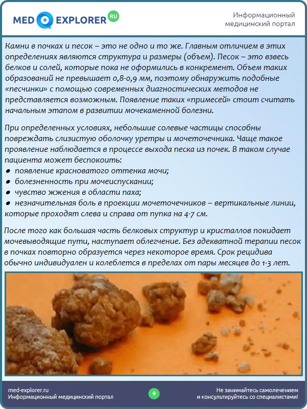 Камни в почках и песок