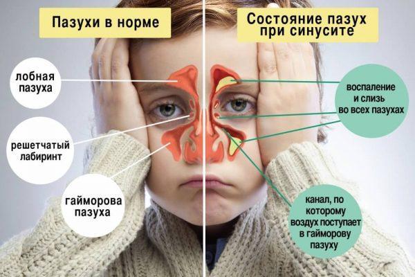 Симптоматика гайморита у детей
